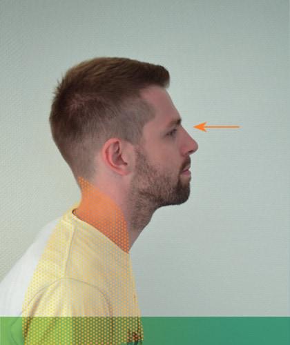Mal de dos - Région centrale-arrière du cou